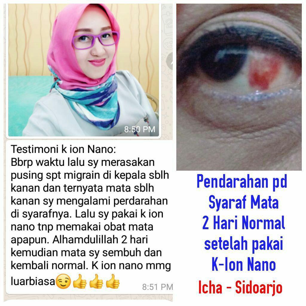 testimoni kacamata k-ion nano37